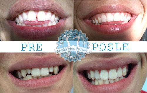 Izbjeljivanje zuba podgorica
